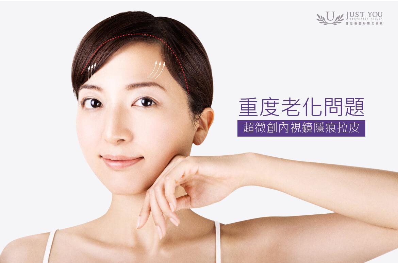 若老化問題嚴重,可選擇佳思優超微創內視鏡隱痕拉皮,透過髮線內的細小傷口,重建臉部年輕框架