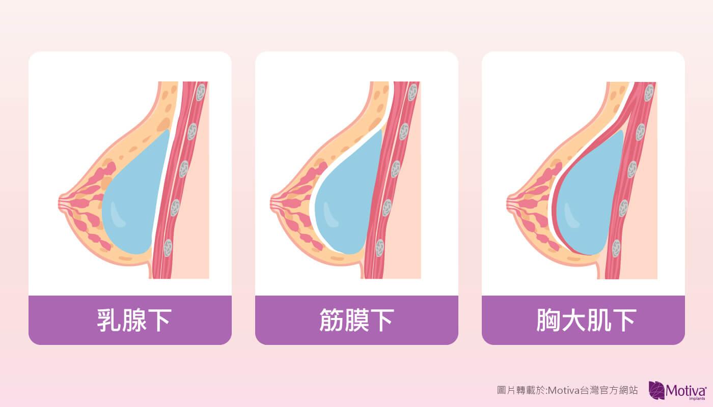 Motiva魔滴隆乳手術後會不會影響哺乳?