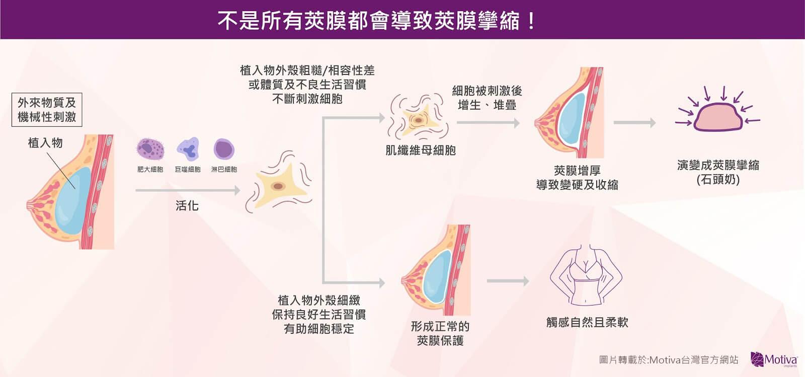 Motiva魔滴隆乳術後緊繃腫脹,是莢膜攣縮?