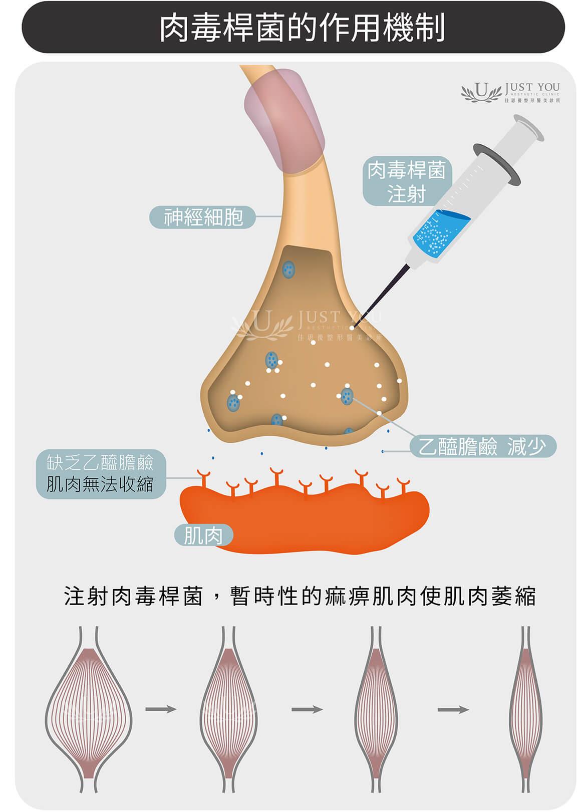 肉毒桿菌素的作用機制