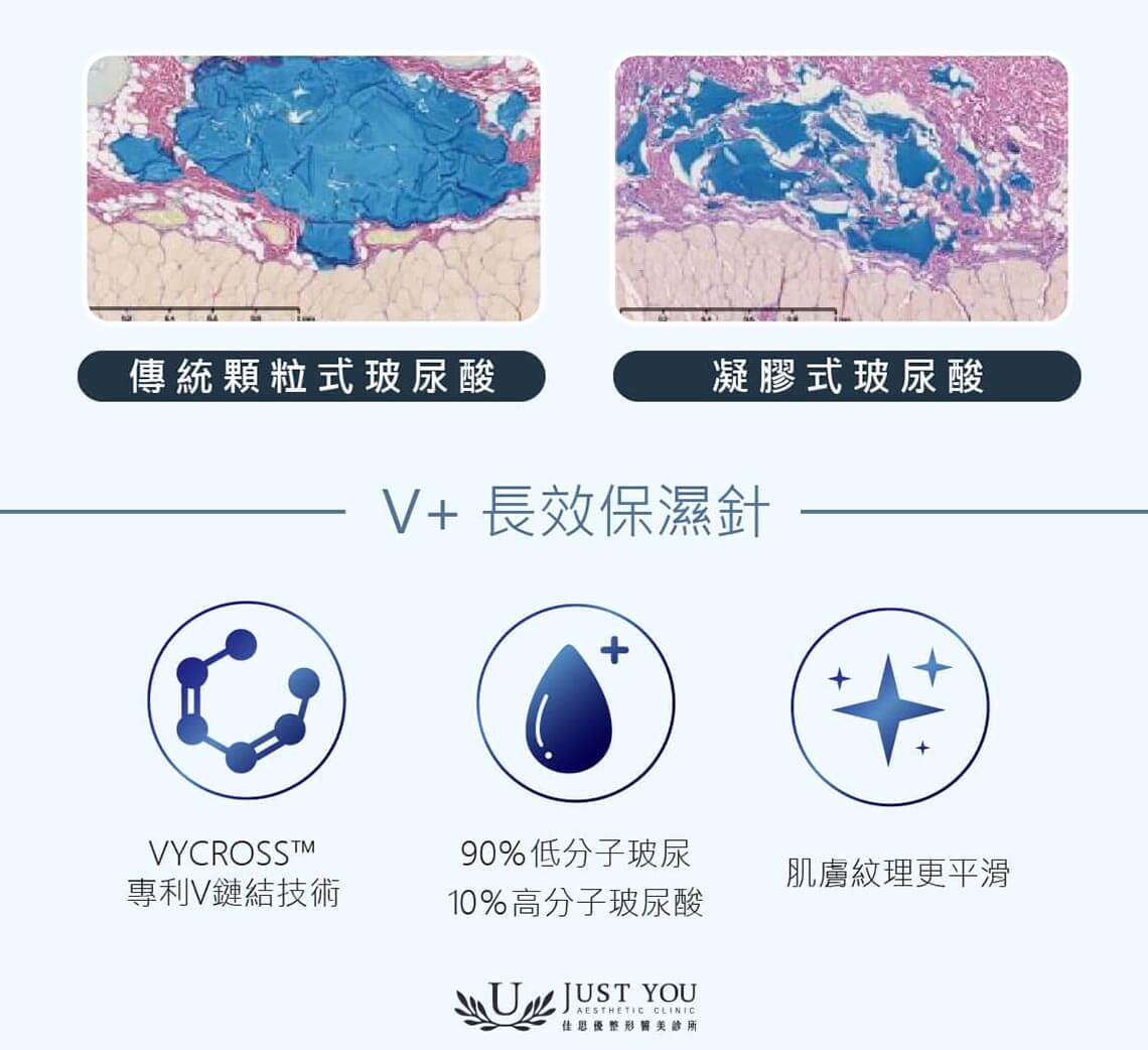 喬雅登V+長效保濕針治療後的肌膚,紋理會更加平滑