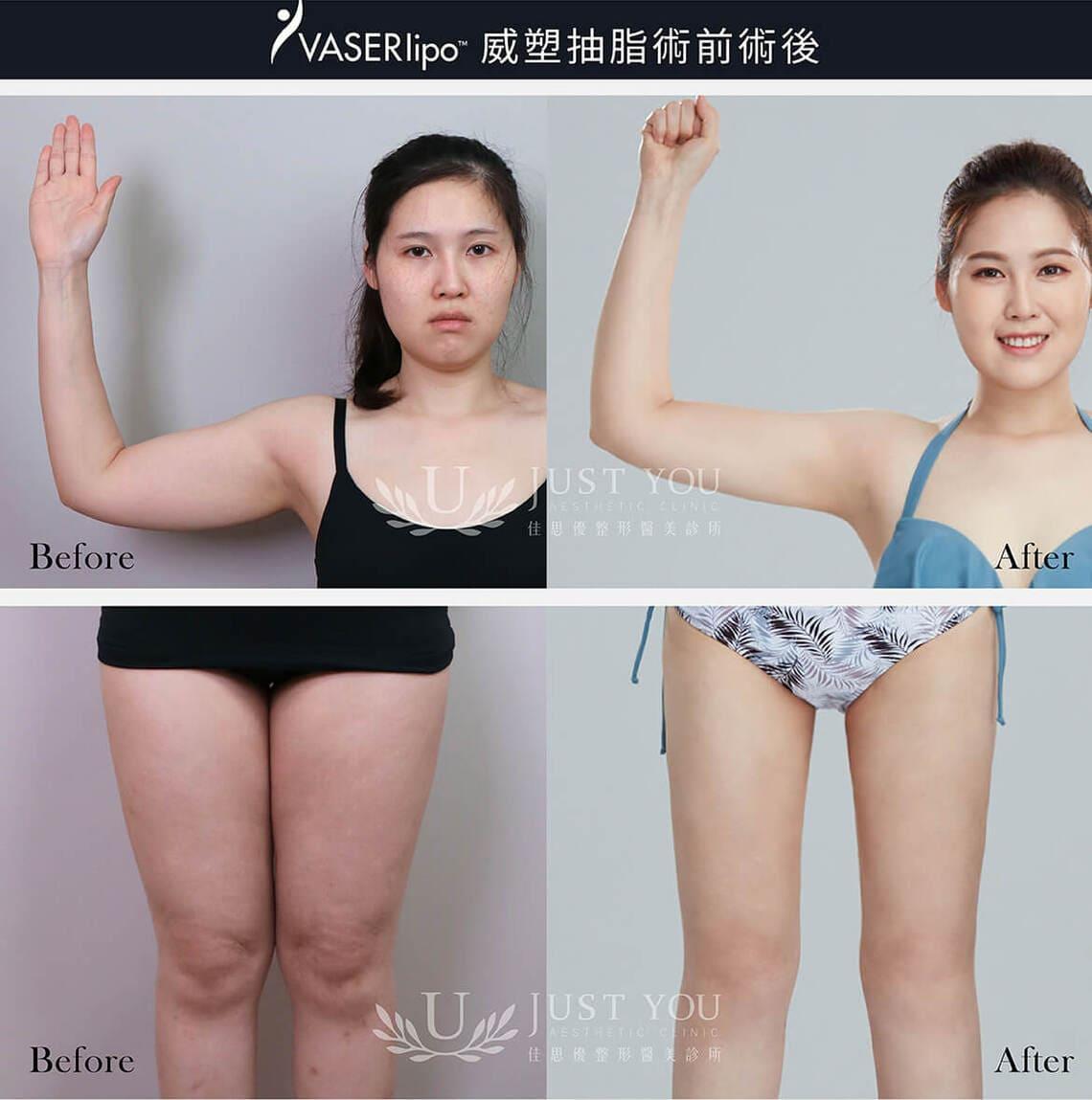 佳思优整形医美诊所VASER2.2 二代威塑抽脂李兆翔医师蝴蝶袖大腿手术案例