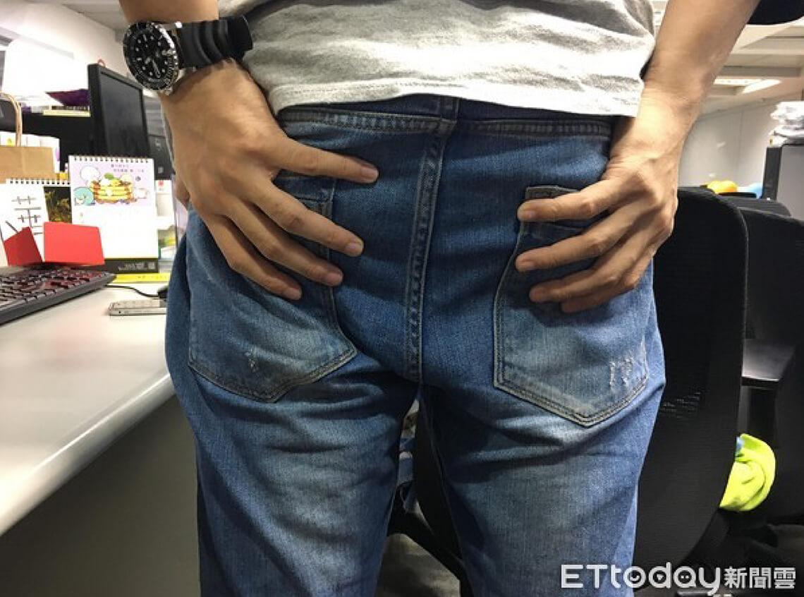 用力排便,導致痔瘡凸出肛門示意圖