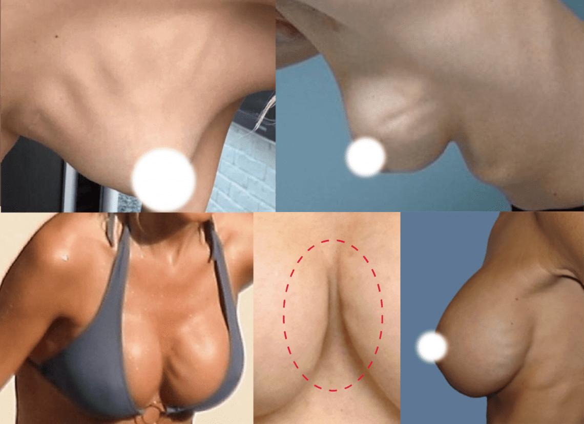 隆乳手術後產生水波紋