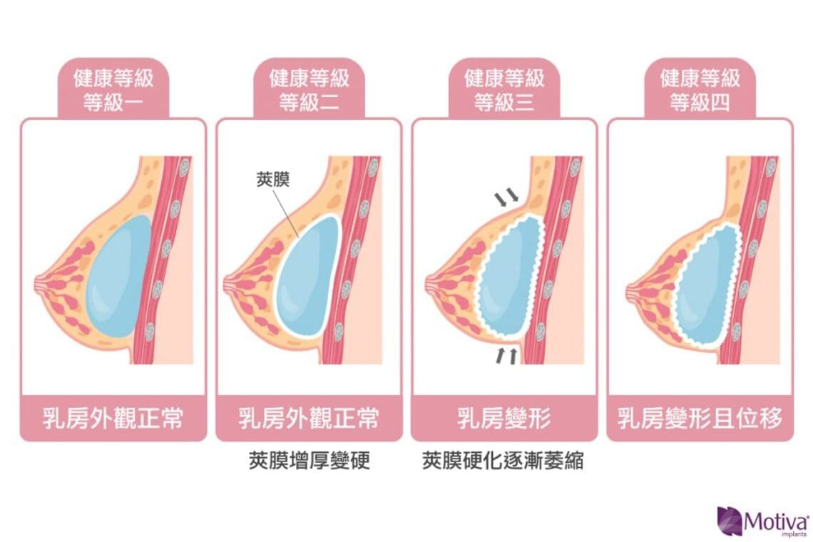隆乳莢膜攣縮等級