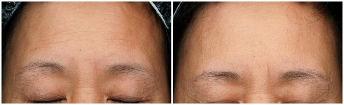 威萃WELEXTRACT細胞溶液改善成效:額頭不飽滿,紋路