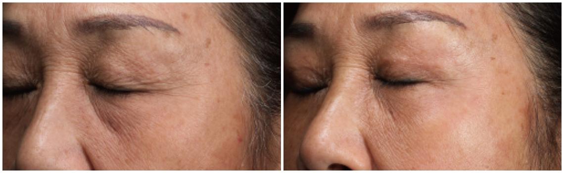 威萃WELEXTRACT細胞溶液改善成效:眼周紋路,臉頰凹陷,眼下凹陷暗沉