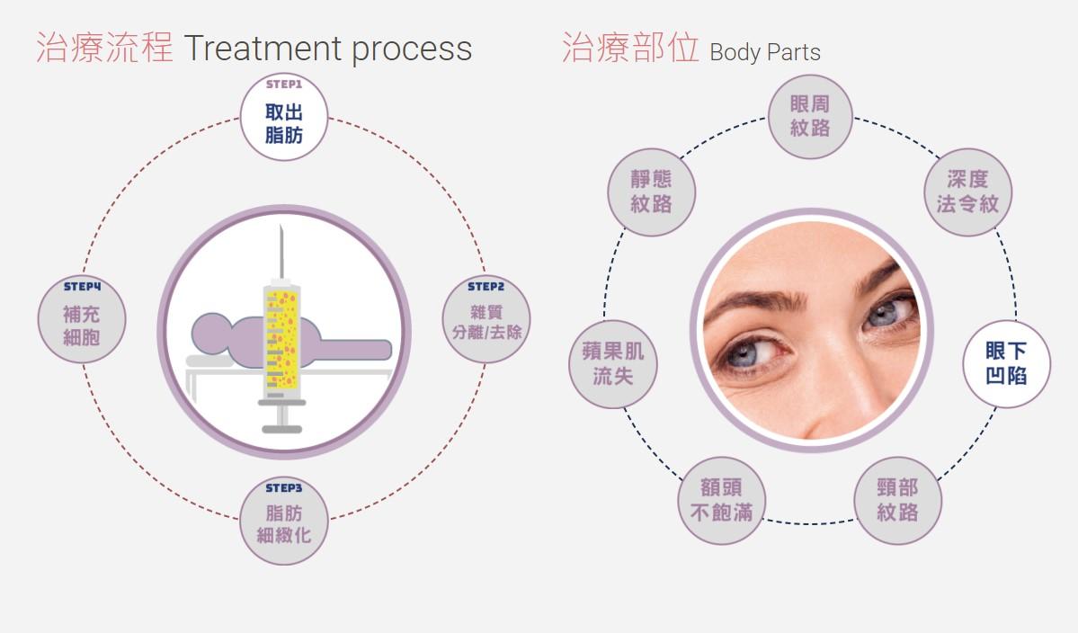 威萃WELEXTRACT細胞溶液治療流程與適用部位