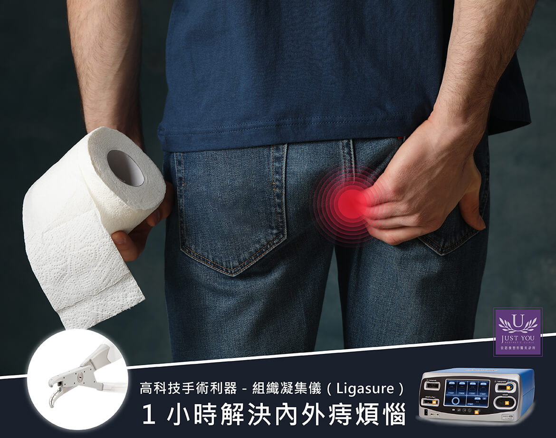 組織凝集儀(Ligasure)」助您1小時解決內外痔煩惱