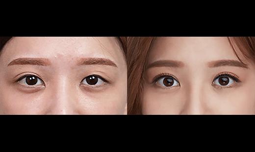 歐美混血雙眼皮案例