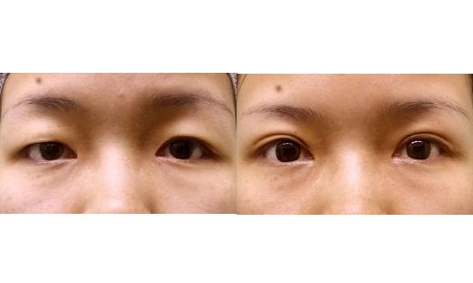 双眼皮案例