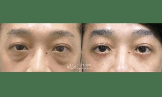 五合一隱痕眼袋-案例