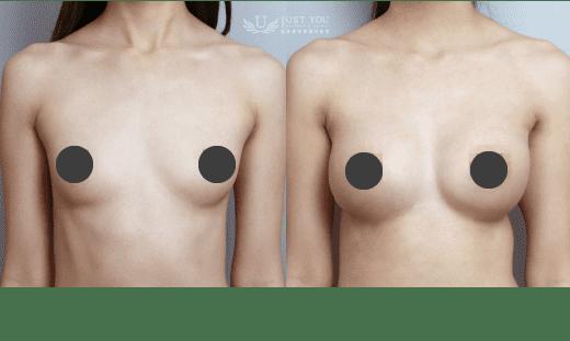果冻硅胶隆乳案例