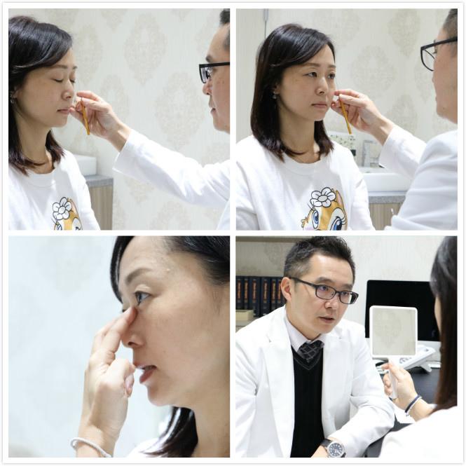 雙眼皮手術X術前醫師專業諮詢