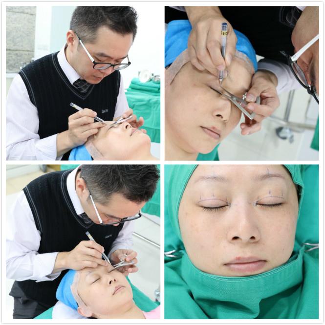 黃仁吳醫師將待會雙眼皮手術的高度作記號