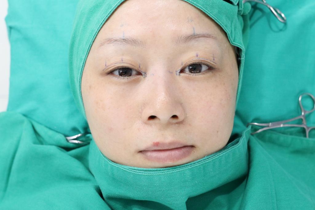 雙眼皮手術前,醫師會作記號