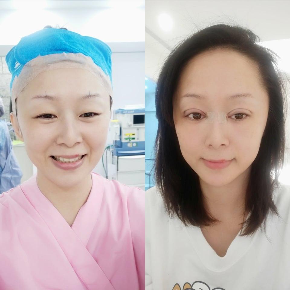 雙眼皮手術前與手術結束當下對比