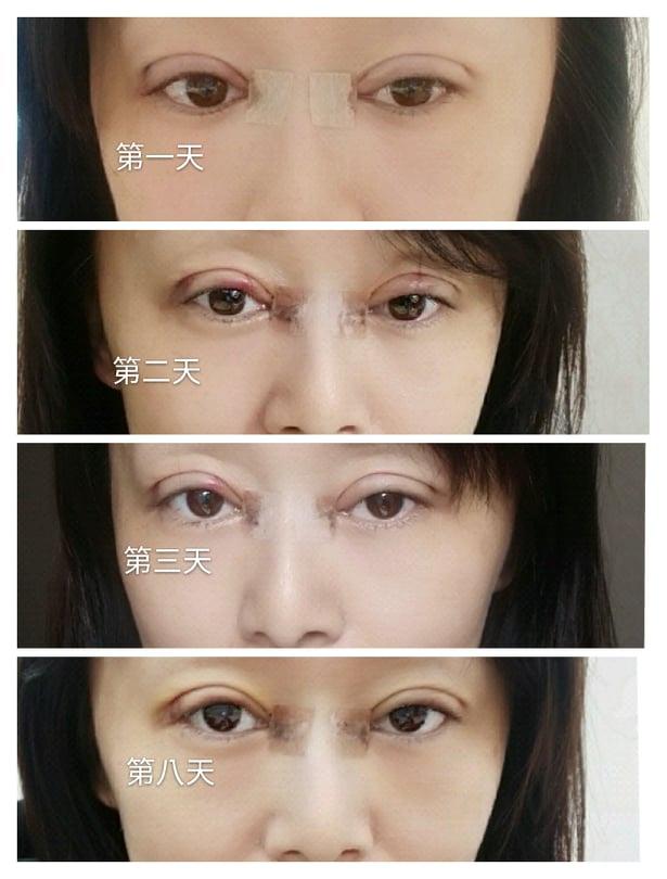 雙眼皮手術術後無瘀青