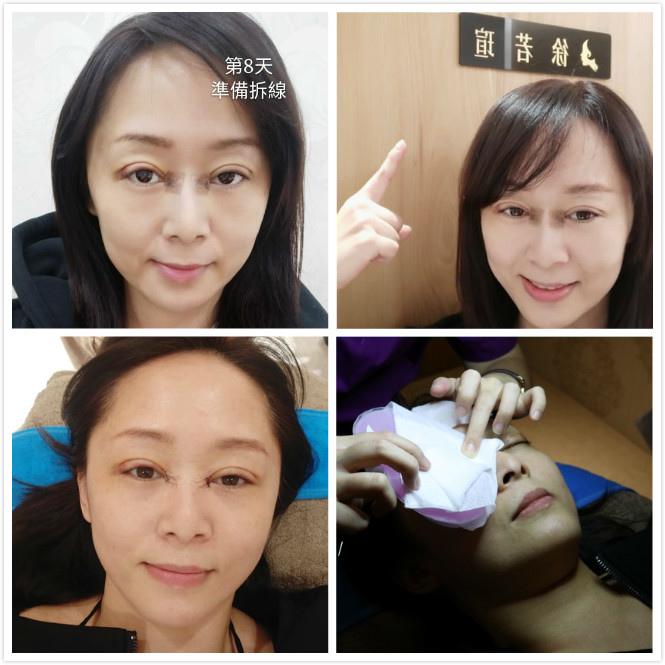 雙眼皮手術術後1週回診拆線