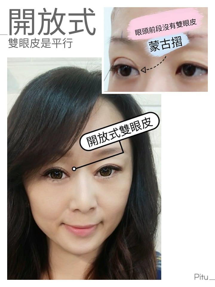 雙眼皮手術後,變成開放式雙眼皮