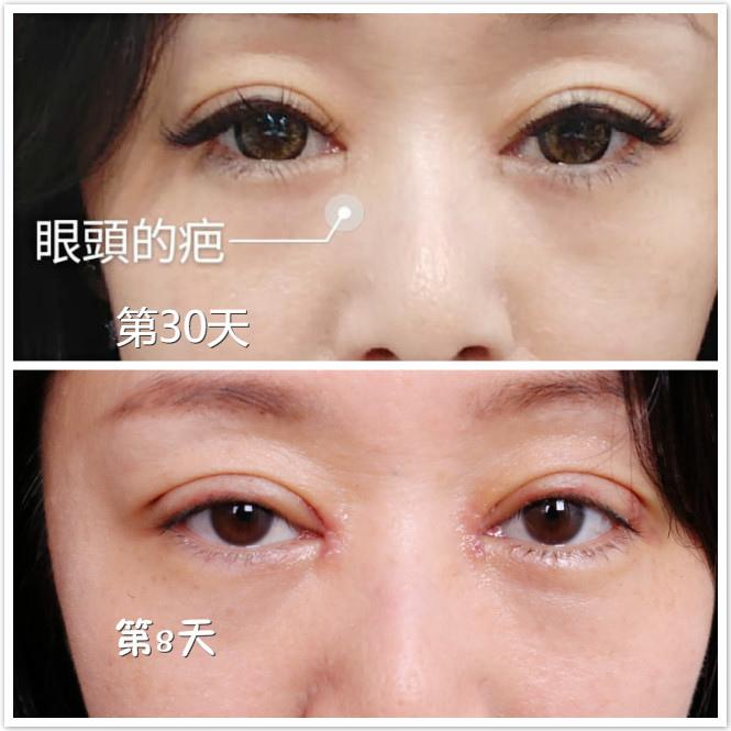 雙眼皮手術後,要認真地擦去疤藥膏