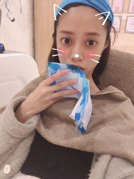 玻尿酸蘋果肌、玻尿酸下巴前,冰敷讓局部暫時較無感
