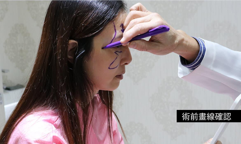 微创内视镜隐痕拉皮前后案例咨询