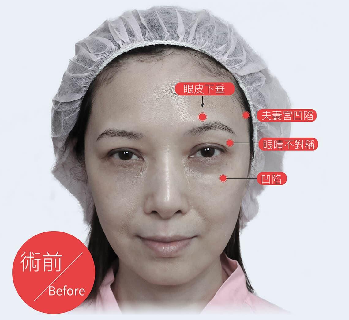微创内视镜隐痕拉皮前后案例问题
