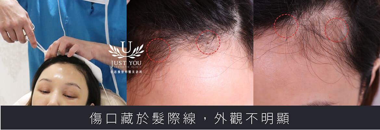 微创内视镜隐痕拉皮前后案例伤口