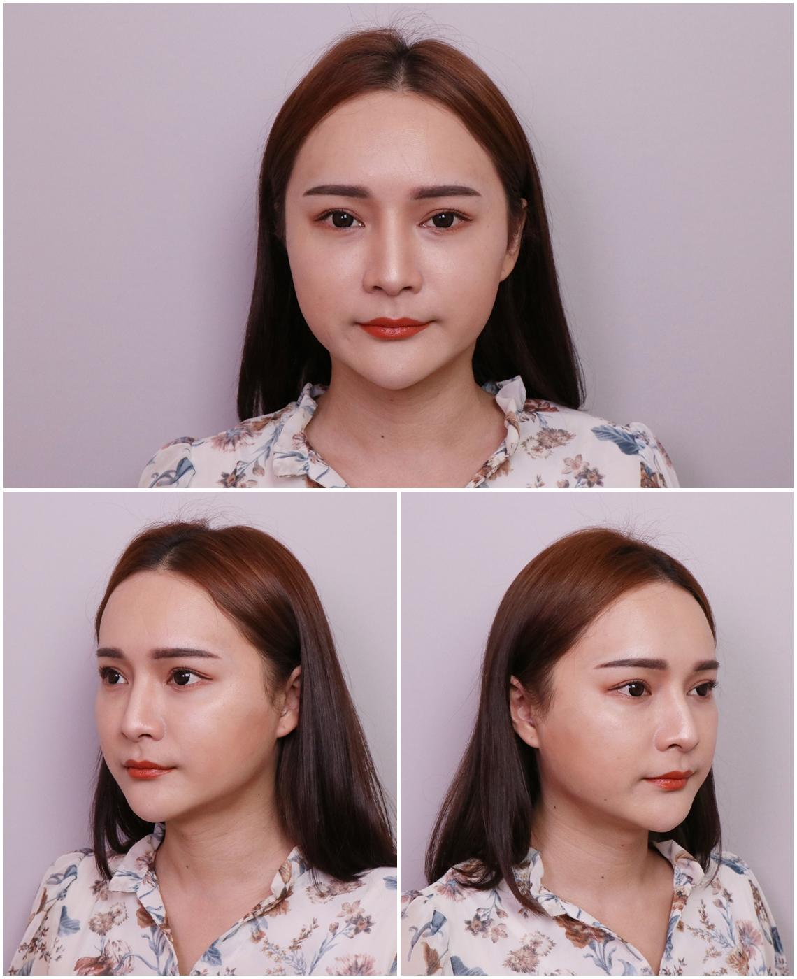 海芙音波拉提術後回診,臉部變回小V臉