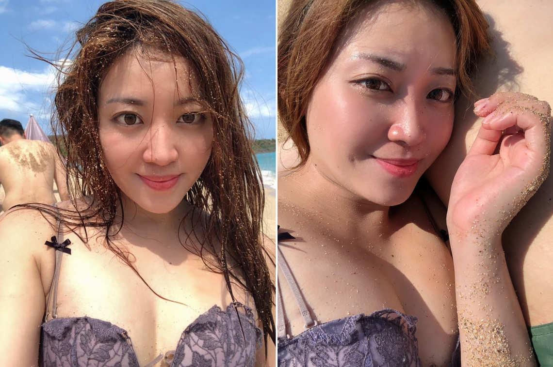 若菻自體脂肪隆乳術後,終於可以穿著性感比基尼去海邊玩耍