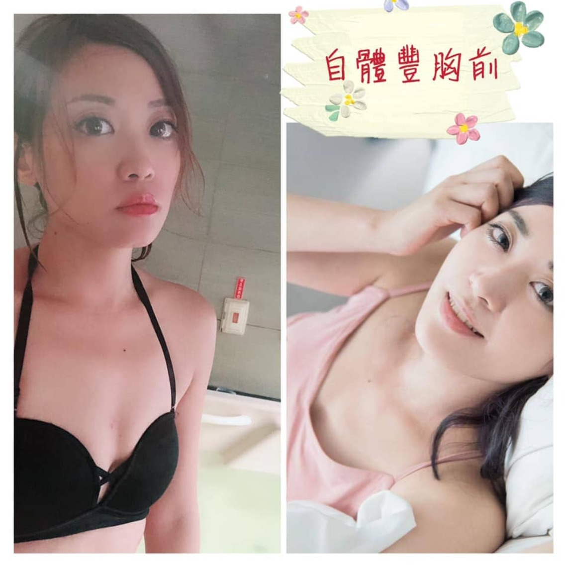 若菻自體脂肪隆乳術前,胸部平平
