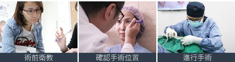 隱痕眼袋手術,疤痕縫得細緻,恢復超快