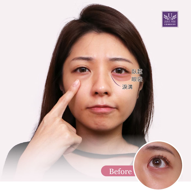 隱痕眼袋術前憔悴、顯老