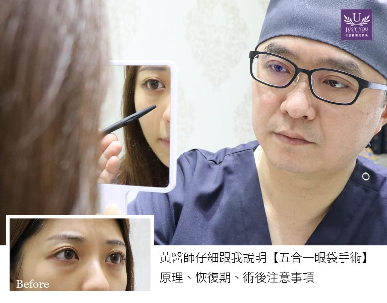 隱痕眼袋手術諮詢