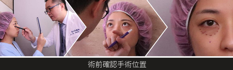 隱痕眼袋術前位置確認