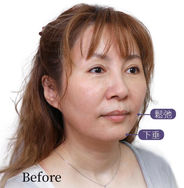 內視鏡拉皮手術前:鬆弛、下垂