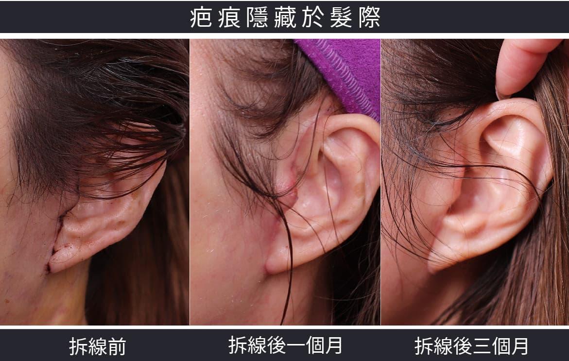 內視鏡拉皮X疤痕隱藏於髮際