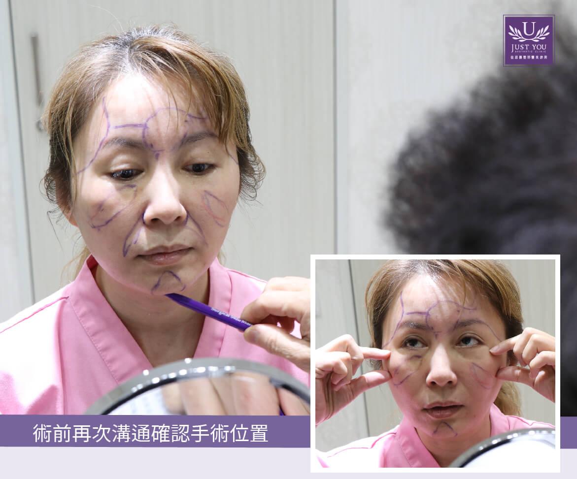 微创内视镜隐痕拉皮前后案例2沟通