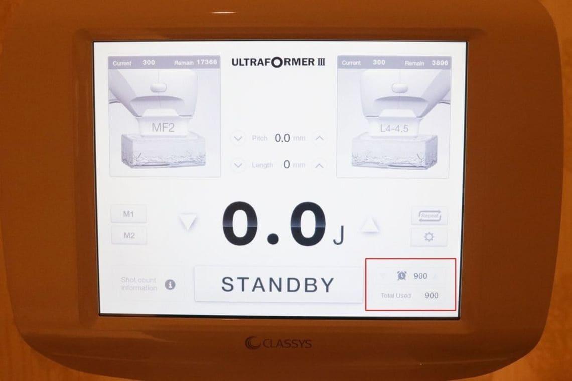 海芙音波治療結束,螢幕上顯示的發數