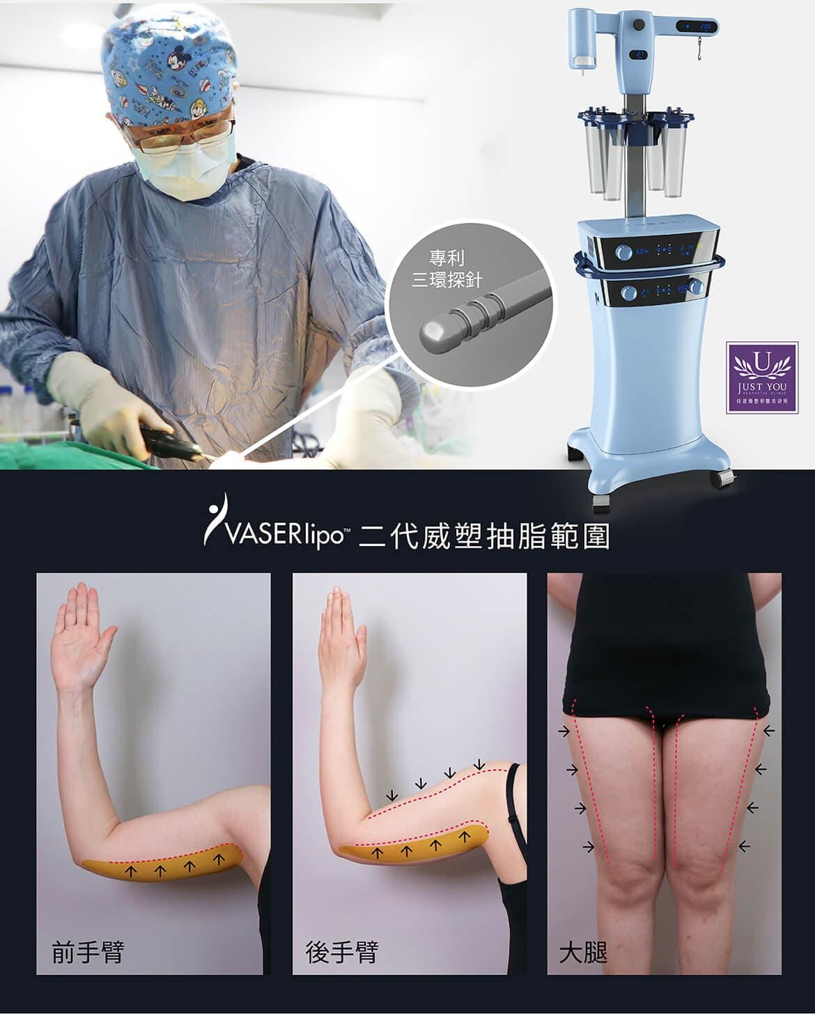 二代威塑抽脂手術,琦兒手術範圍
