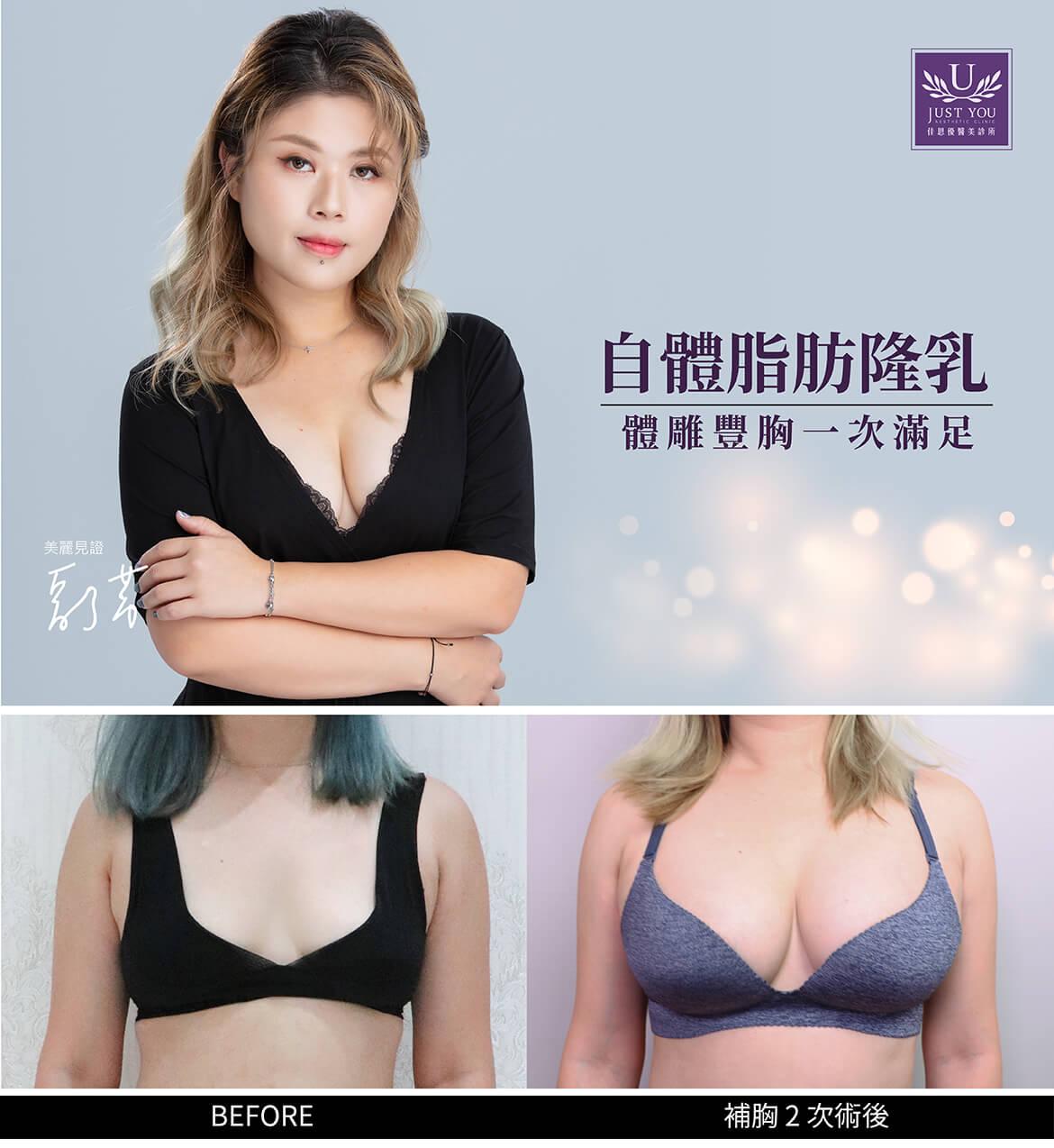 佳思優整形醫美診所李兆翔醫師自體脂肪隆乳美麗見證