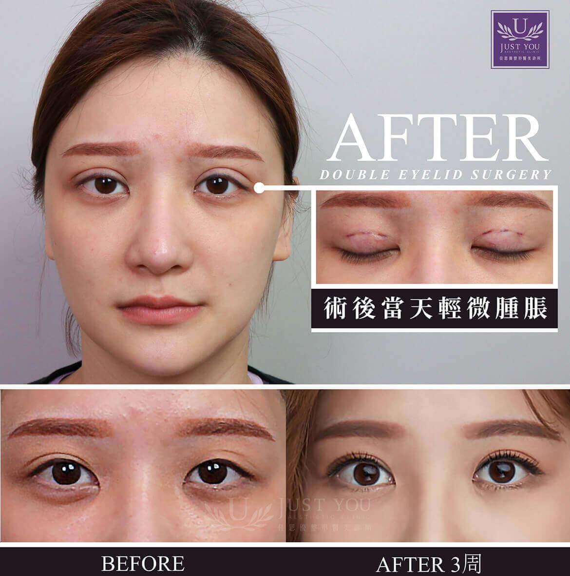 双眼皮手术见证术后当下