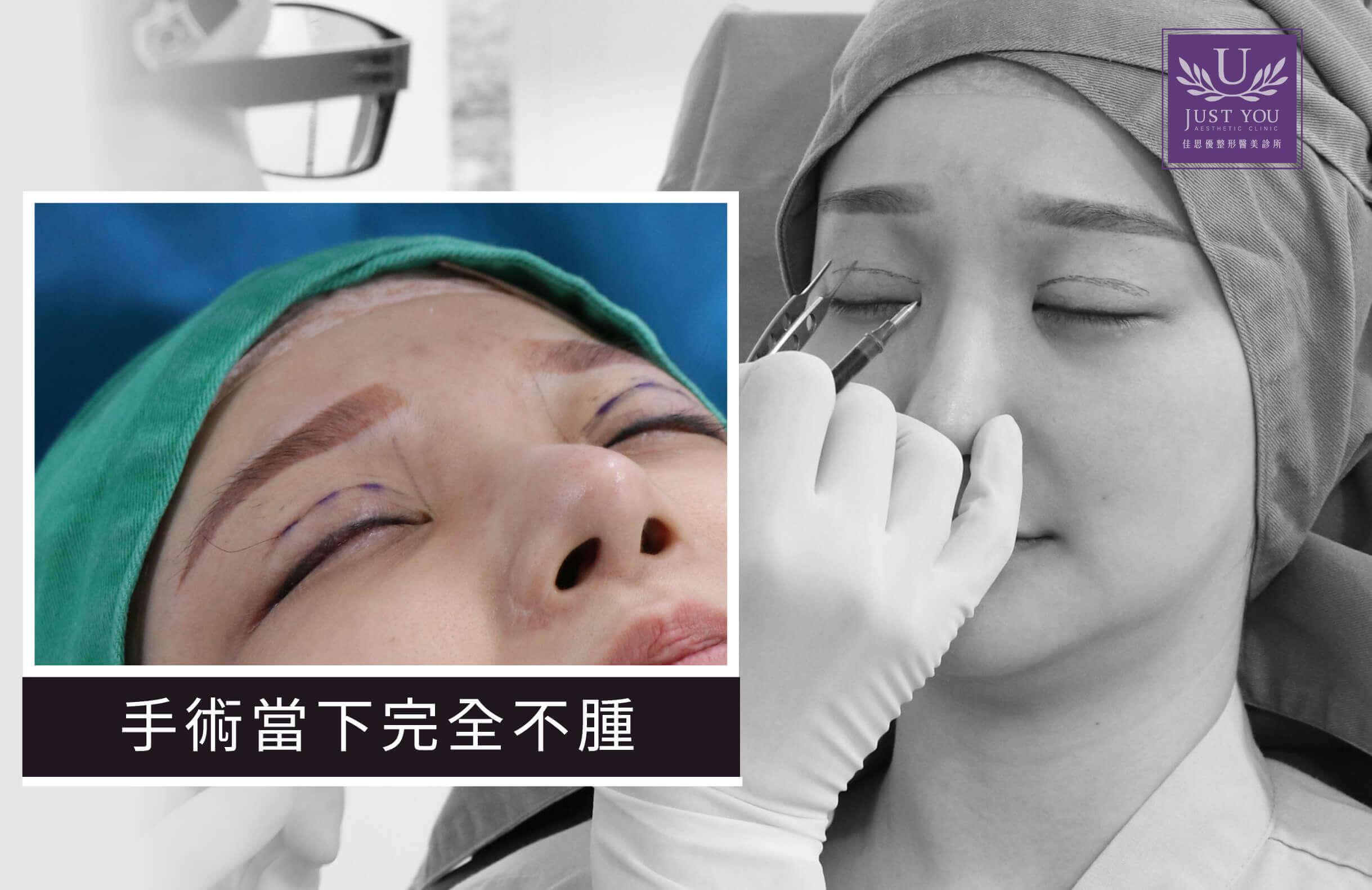 欧美混血双眼皮见证VIVI_手术过程