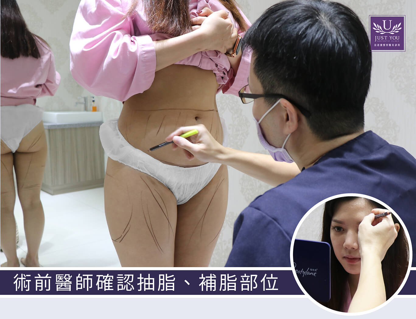 二代威塑抽脂医师确认手术位置