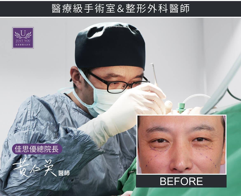 五合一眼袋手术采用高规格,医疗级手术室与整形外科医师亲自执刀